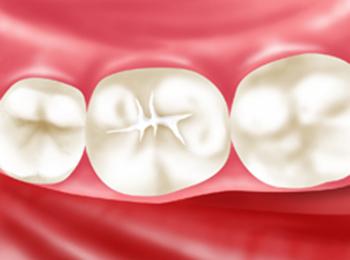 幼児 虫歯予防 シーラント