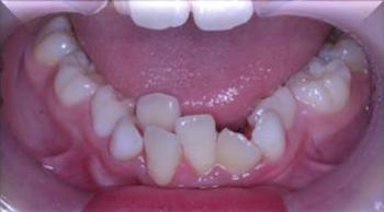 子供 歯並び 矯正